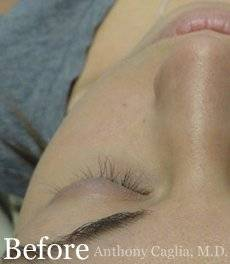 Latisse eyelash regrowth before - Plano, Allen, McKinney, Frisco