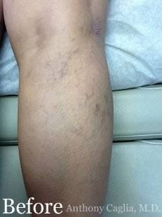 Spider Vein Treatment, Varicose Vein Treatment, Sclerotherapy, Vein Treatment, Laser Vein Treatment