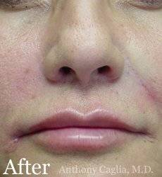 Lip augmentation, lip filler, nasal labial treatment after - Plano, Dallas, Allen, McKinney