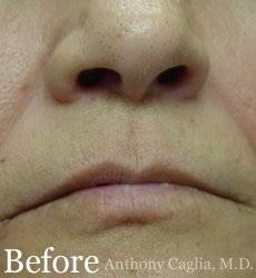 Lip augmentation, lip filler, nasal labial treatment before - Plano, Dallas, Allen, McKinney