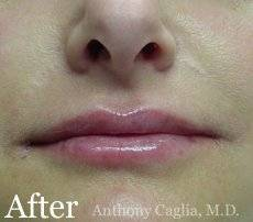 Lip filler, lip augmentation after - Dallas, Allen Frisco, Richardson