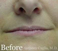 Lip filler, lip augmentation before - Dallas, Allen Frisco, Richardson