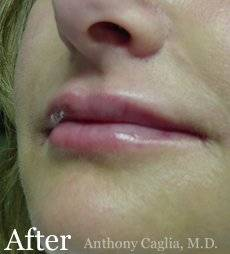 Lip filler, lip augmentation, nasal labial treatment after - Dallas, Allen Frisco, Richardson