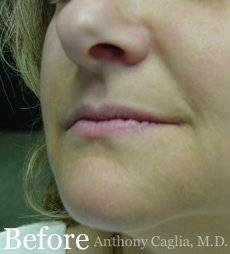 Lip filler, lip augmentation, nasal labial treatment before - Dallas, Allen Frisco, Richardson