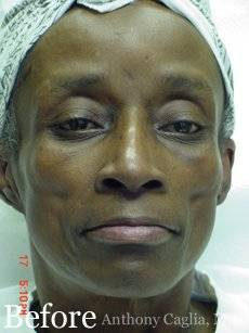 Lipoatrophy, sculptra dermal fillers before - Garland, Richardson, Plano, Dallas