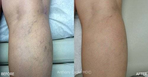 Spider Vein Treatment, Vein Treatment, Varicose Vein Treatment, Spider Veins, Laser Vein Treatment, Dallas, Plano, Allen, Frisco, McKinney, DFW, Texas