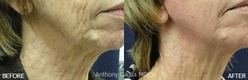 Laser Resurfacing, CO2 Resurfacing, before and after. Frisco.