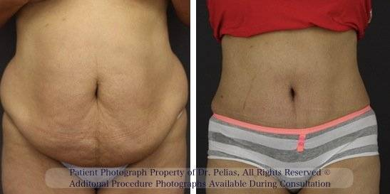Mark Tummy Tuck Result Front View