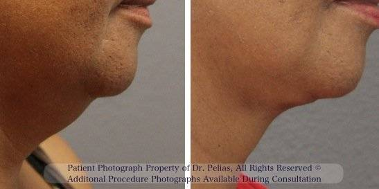 Facelift Slift  Before and After