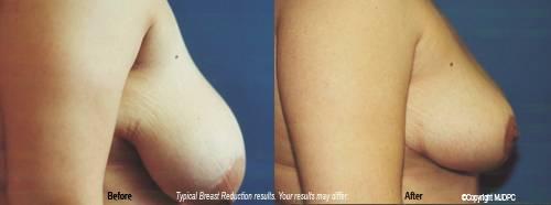 breasts fill hands