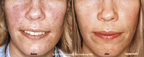 spider veins on face causes