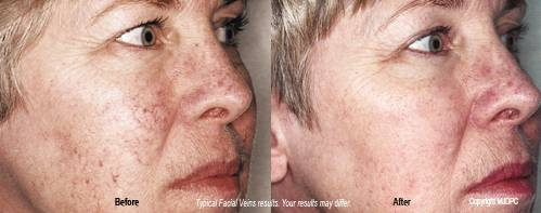 Remove facial veins south florida