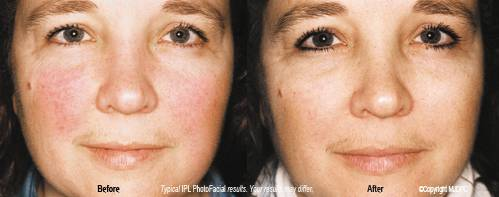 IPL Photo Facial Rejuvenation | Dr  Thomas A  Pane
