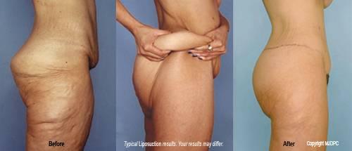Lower Body Lift Los Angeles Beverly Hills Dr Brian Kinney Board Certified Plastic Surgeon Brianmkinneymd Com